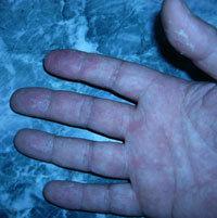 指の皮が剥けます
